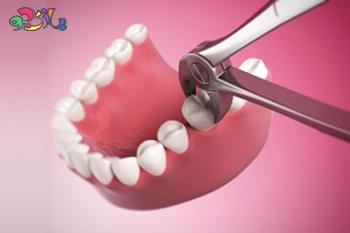 نحوه کشیدن دندان و راههای ترمیم جای زخم
