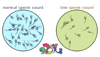 عوامل به وجود آورنده مشکلات باروری مردان