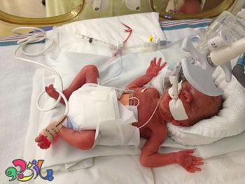 همه چیز در مورد نوزادان  نارس