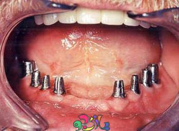 ایمپلنت دندان چیست  سری اول