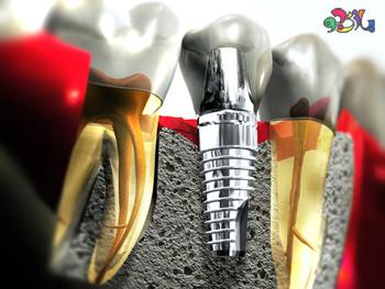 ایمپلنت دندان چیست سری چهارم